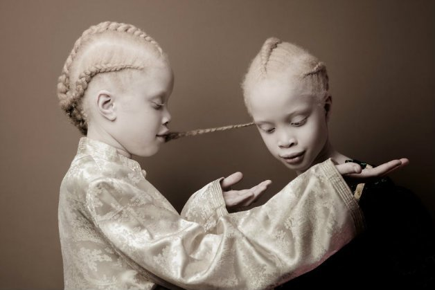 img 59ae393aa98a4.png?resize=412,275 - Conheça as gêmeas albinas brasileiras que estão arrasando no mundo da moda
