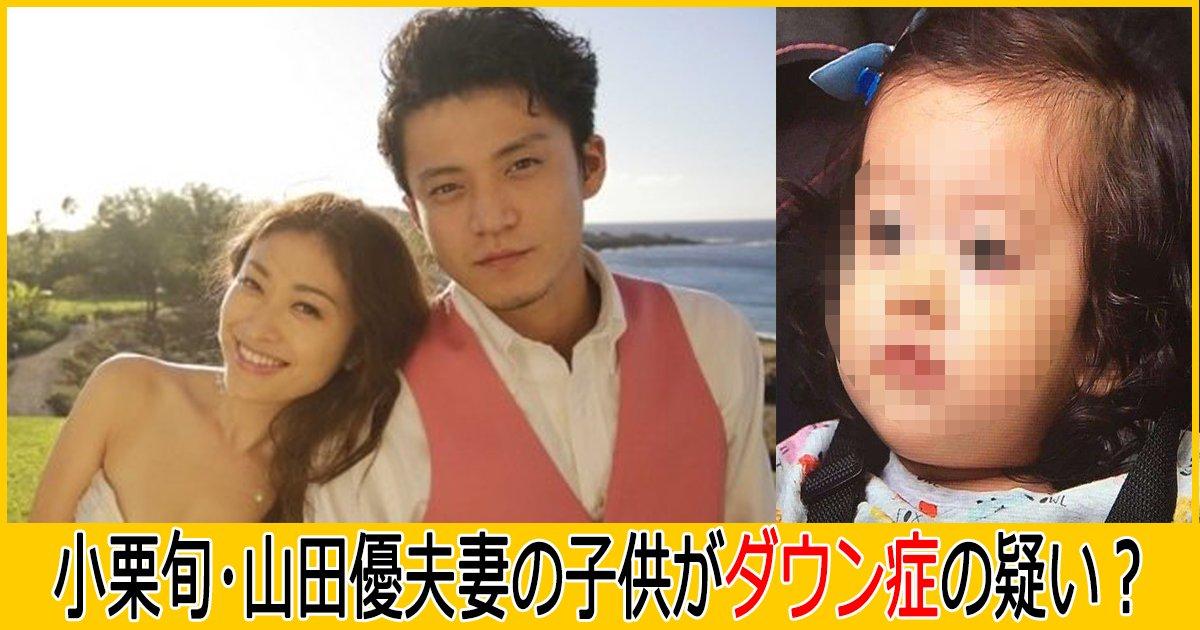 oguri th.png?resize=412,232 - 小栗旬・山田優夫妻の子供がダウン症の疑い?その真相は?