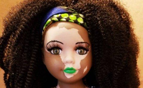thumbnail 2.png?resize=412,232 - Artista cria bonecas com vitiligo para pessoas com essa rara condição de pele