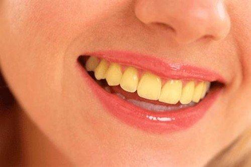 Dr smilez