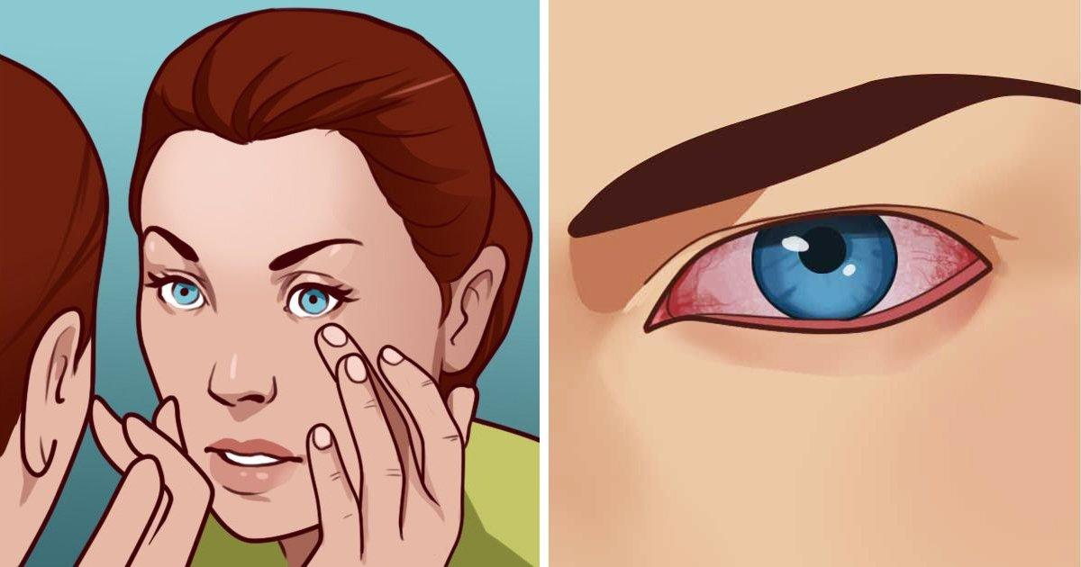1 31 - 당신의 '눈'이 경고하는 8가지 건강 '적신호'