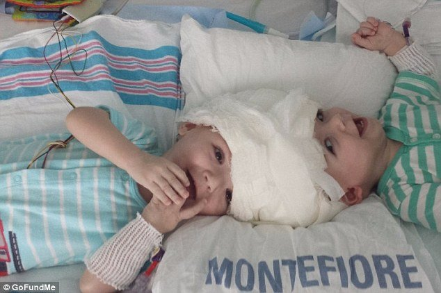 39628cfa00000578 0 image a 1 1476454862505.jpg?resize=412,232 - Twin Boys Conjoined At The Head Were Born... Doctor Said They Need A Life-Threatening Operation