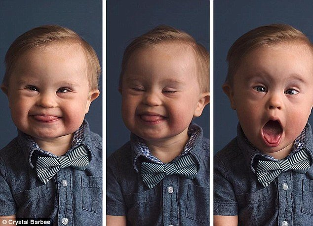 39ba738d00000578 3873862 image a 3 1477471914396.jpg?resize=412,232 - Baby Rejected For A Clothing Commercial 'Because He Has Down's Syndrome'