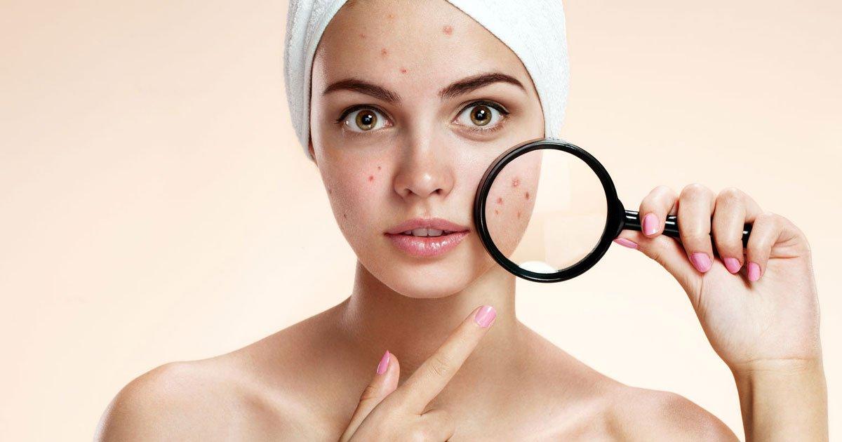 acne.jpg?resize=412,232 - El acné en tu rostro indica qué órgano de tu cuerpo necesita cuidado.
