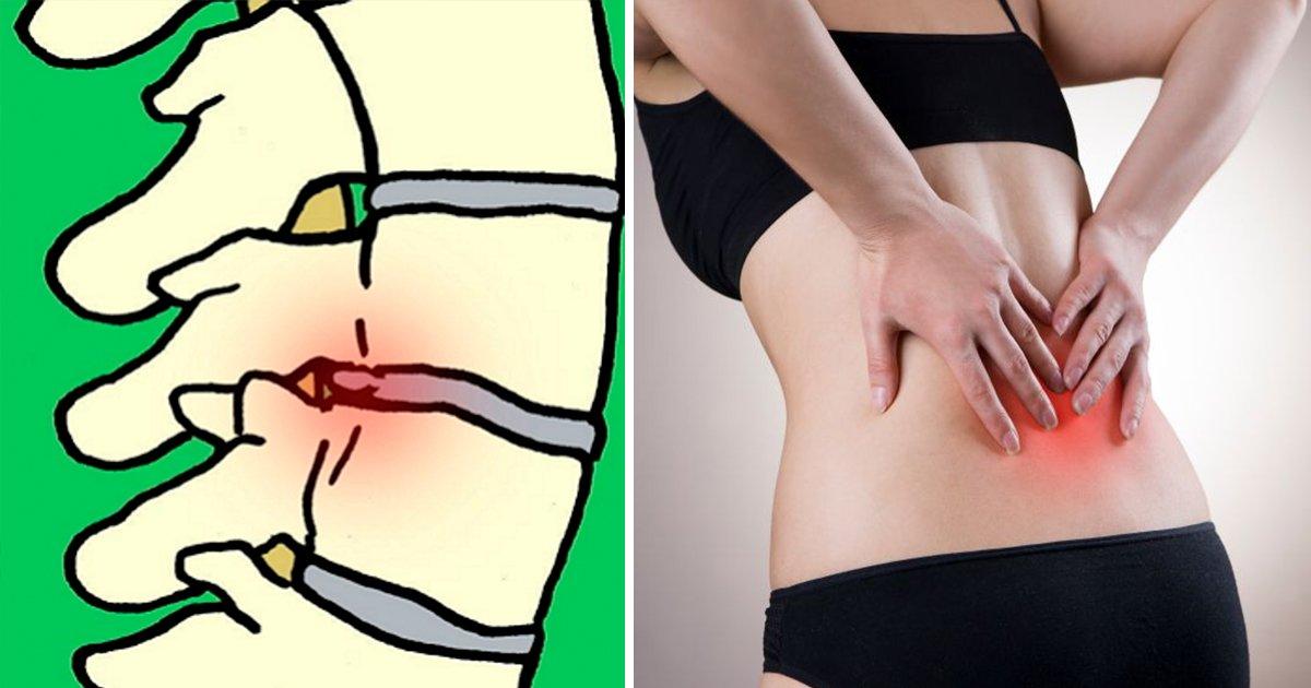 article thumbnail 48 - 심하면 수술까지 해야 하는 '디스크' 초기 증상 6가지