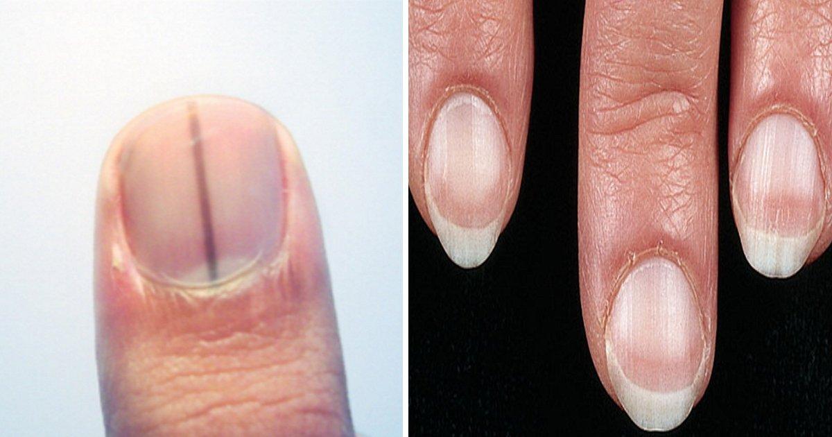 article thumbnail 49 - 당신의 '손톱' 상태로 알아보는 건강 상태 8