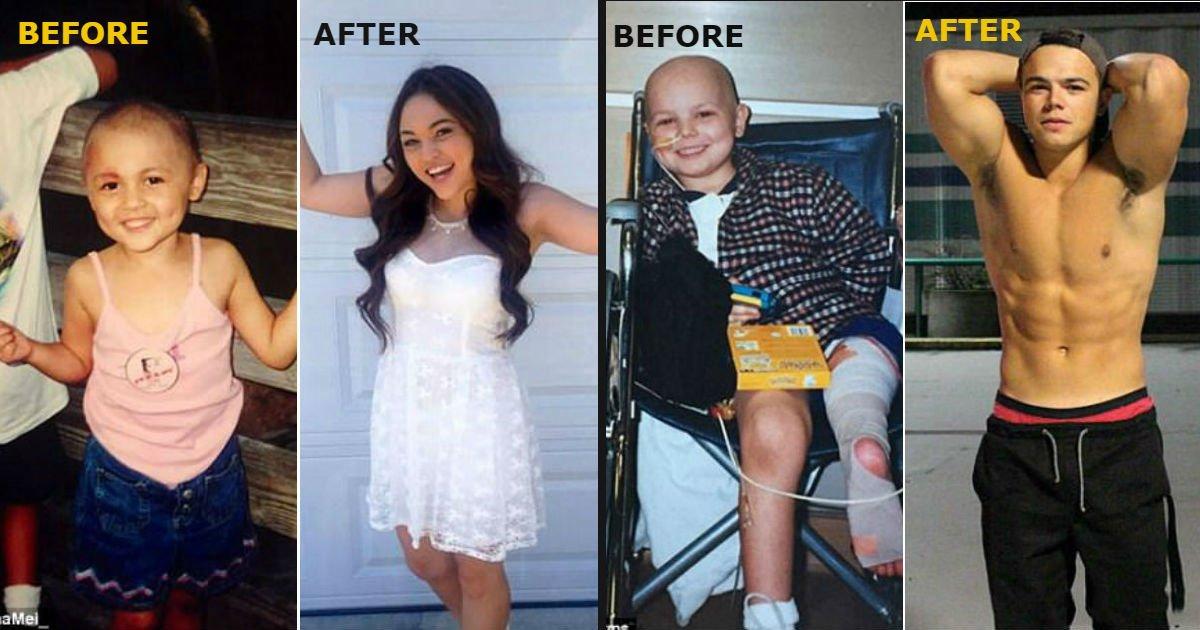 cancer2 - '암'을 극복한 사람들...세상에서 가장 감동적인 비포&애프터 (사진 12장)