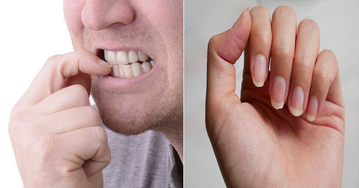 ec8690ed86b1.jpg?resize=1200,630 - '손톱 물어뜯는 습관' 때문에 죽음에 이르게 된 남성