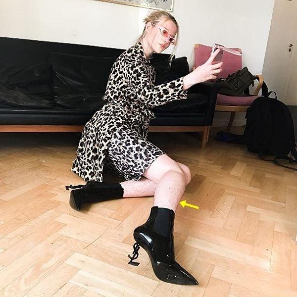 脚の除毛を拒否したモデルに非難と性暴力脅迫か