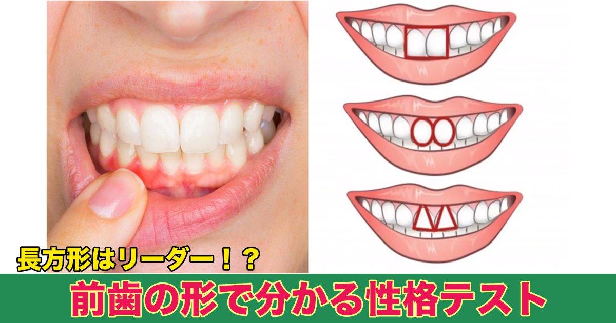 88 111.jpg?resize=1200,630 - 長方形はリーダー!?前歯の形で分かる性格テスト