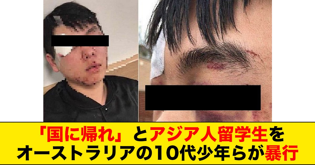 88 91.jpg?resize=1200,630 - 「国に帰れ」とアジア人留学生をオーストラリアの10代少年らが暴行
