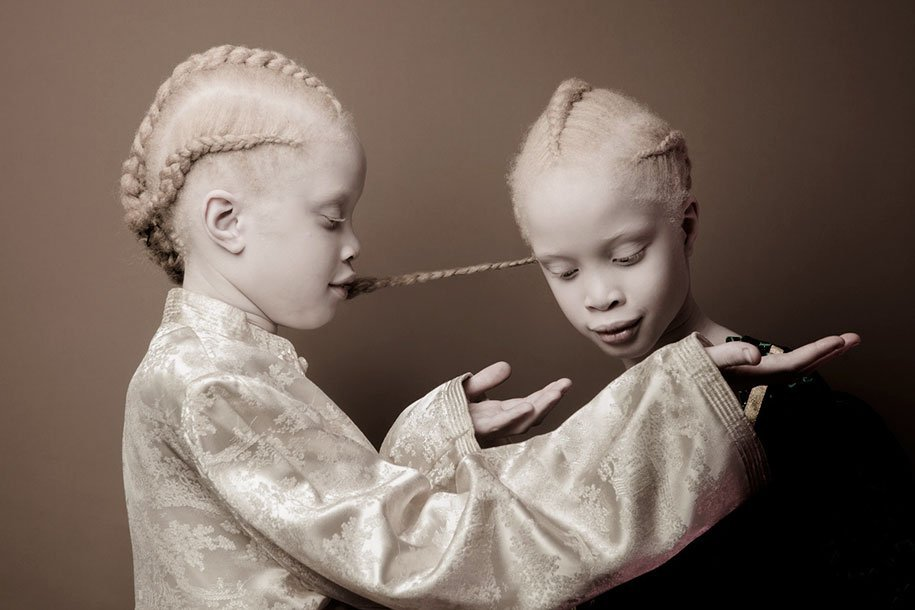 albino-twins-models-bawar-1