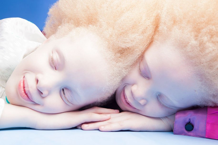 albino-twins-models-bawar-11