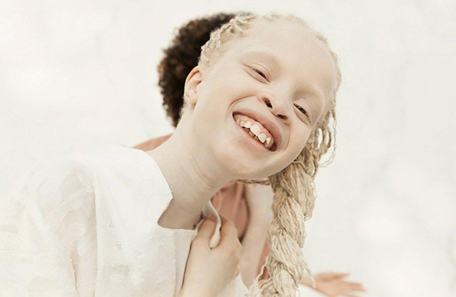 albino-twins-models-bawar-12