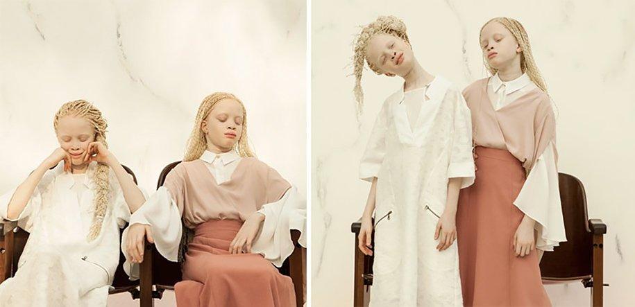 albino-twins-models-bawar-13