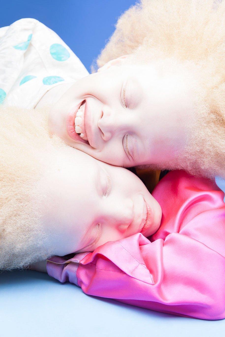albino-twins-models-bawar-3