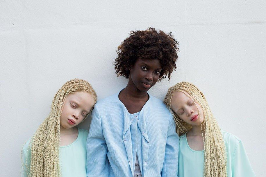 albino-twins-models-bawar-7