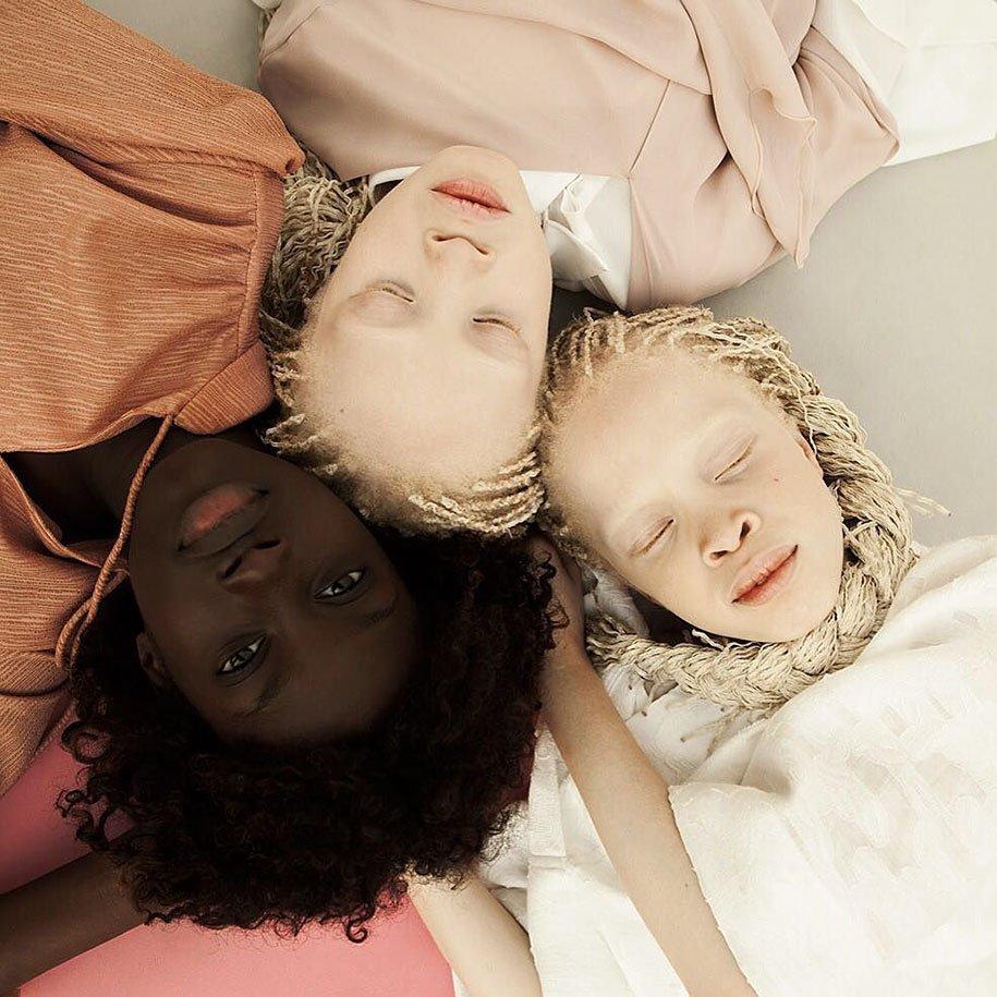 albino-twins-models-bawar-8