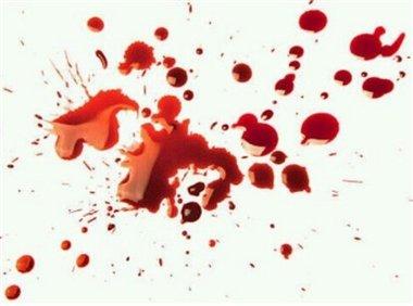 手のひら 血에 대한 이미지 검색결과