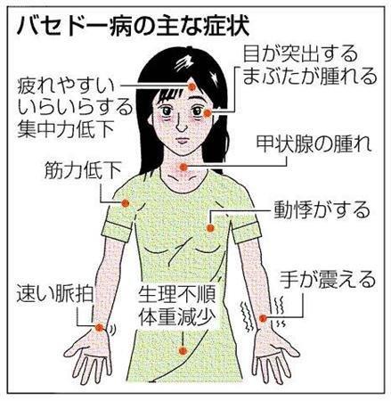 絢香 バセドウ病에 대한 이미지 검색결과