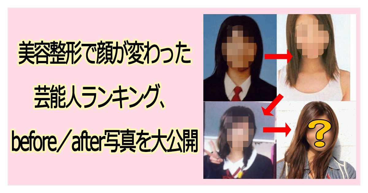 biyouseikei th 1.png?resize=1200,630 - 美容整形で顔が変わった芸能人ランキング、before/after写真を大公開