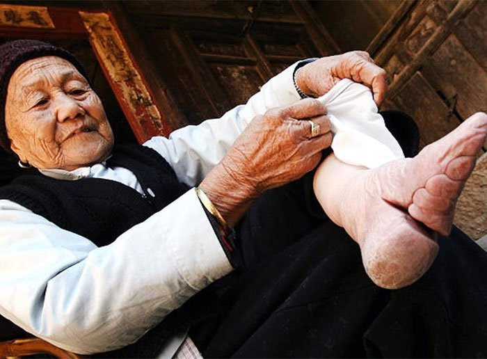 chinas-foot-binding1