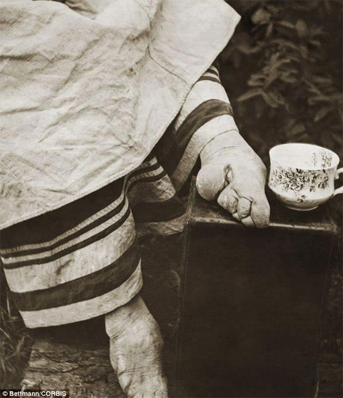 chinas-foot-binding10
