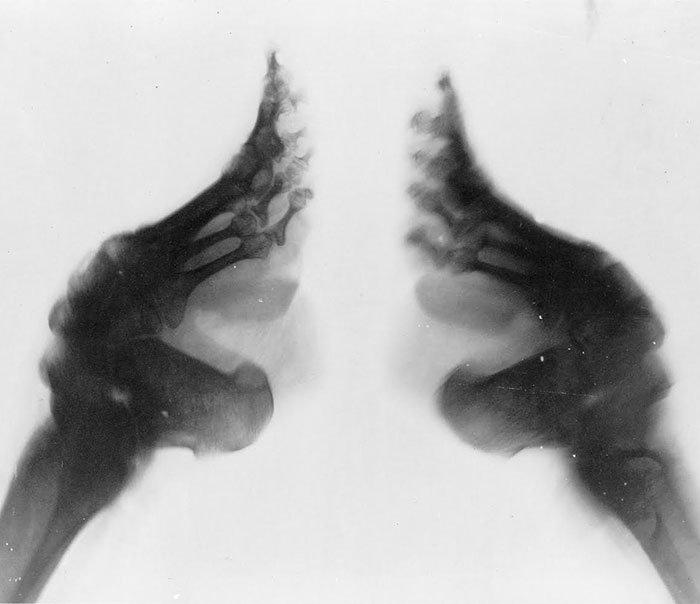 chinas-foot-binding2