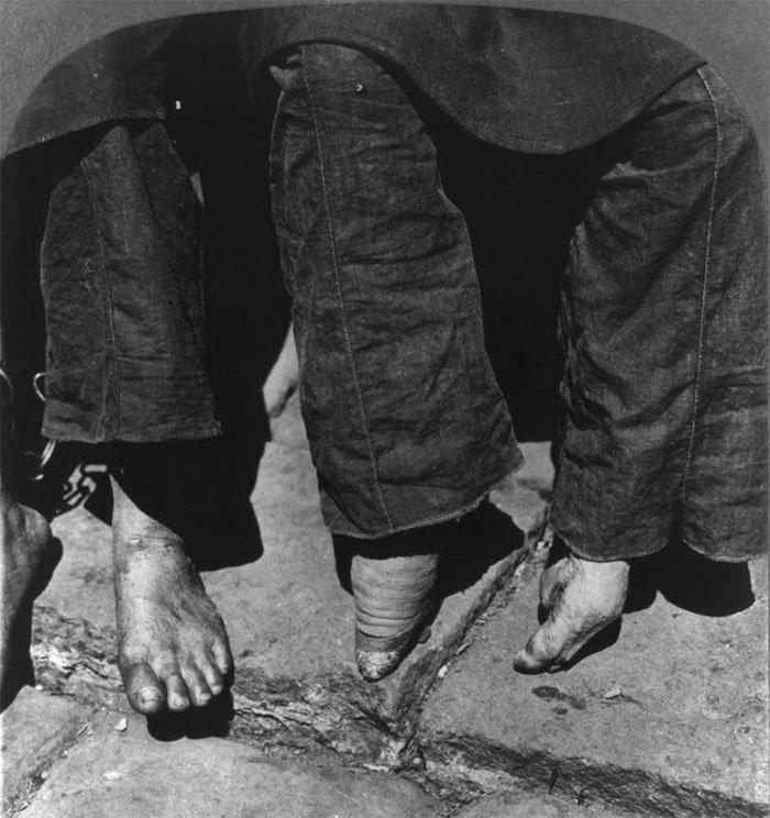 chinas-foot-binding3