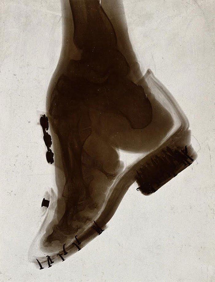 chinas-foot-binding4
