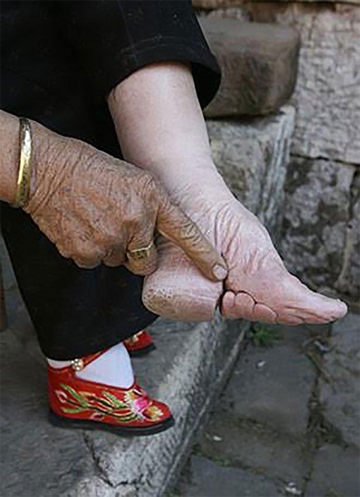 chinas-foot-binding7