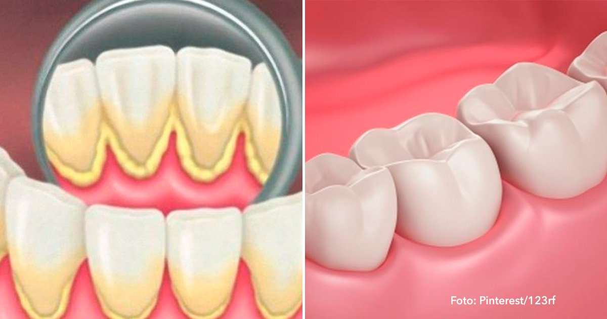 cober - Puedes evitar la placa dental y el sarro con estos 2 sencillos remedios caseros