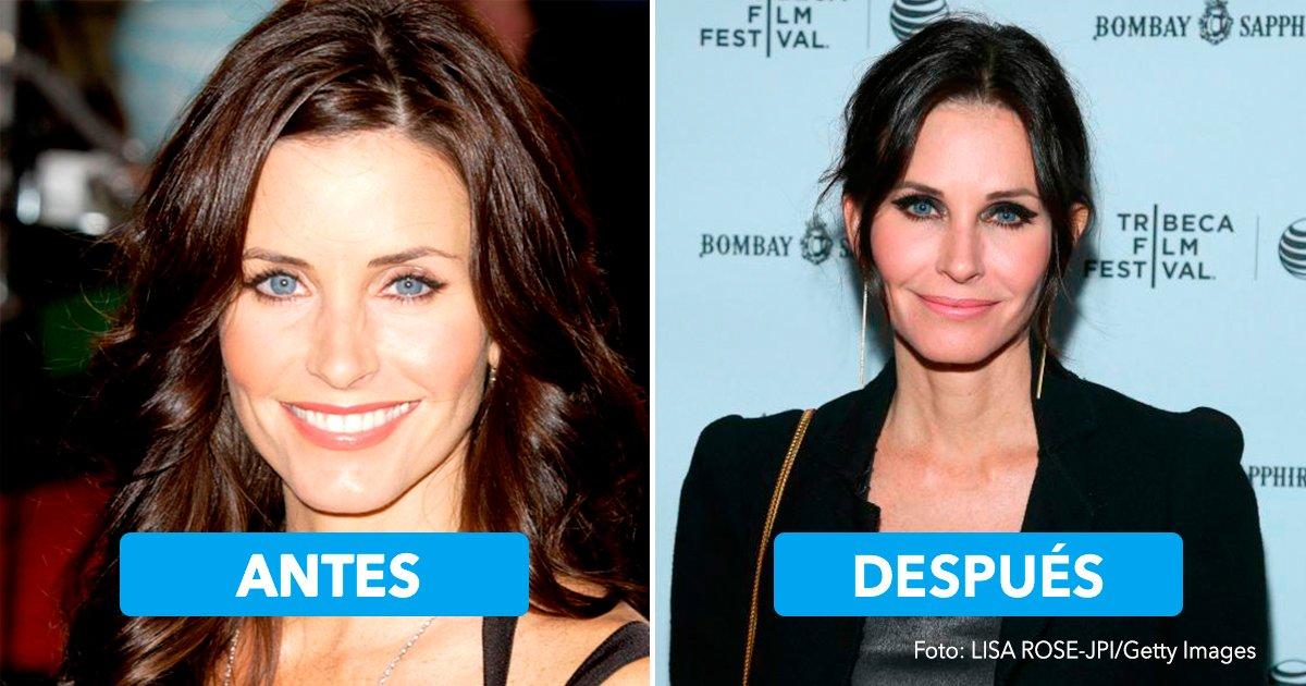 cover3 2.jpg?resize=1200,630 - 10 celebridades que se han sometido a cambios radicales por las cirugías