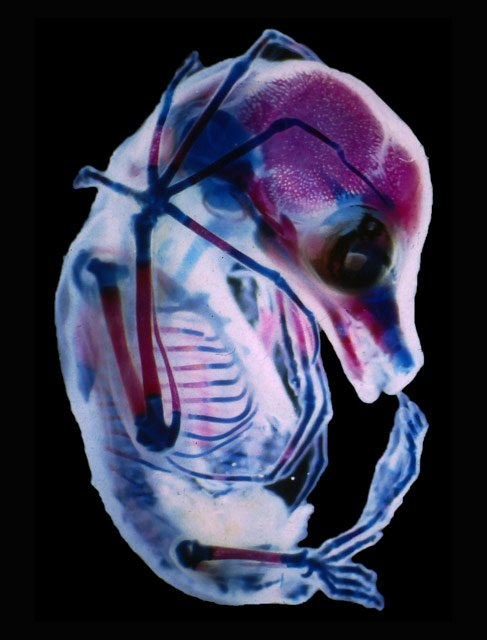 drrick-adams-foetus15