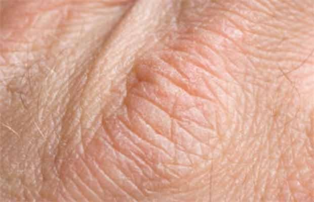 dry-skin-symptoms
