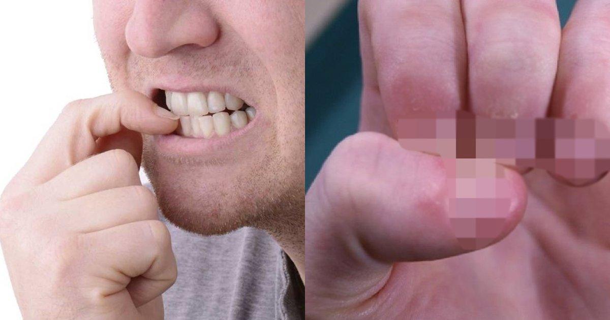 e69caae591bde5908d 1 6 - 嚇到吃手手?愛咬指甲的人注意了,後果可能比你想的還更嚴重!
