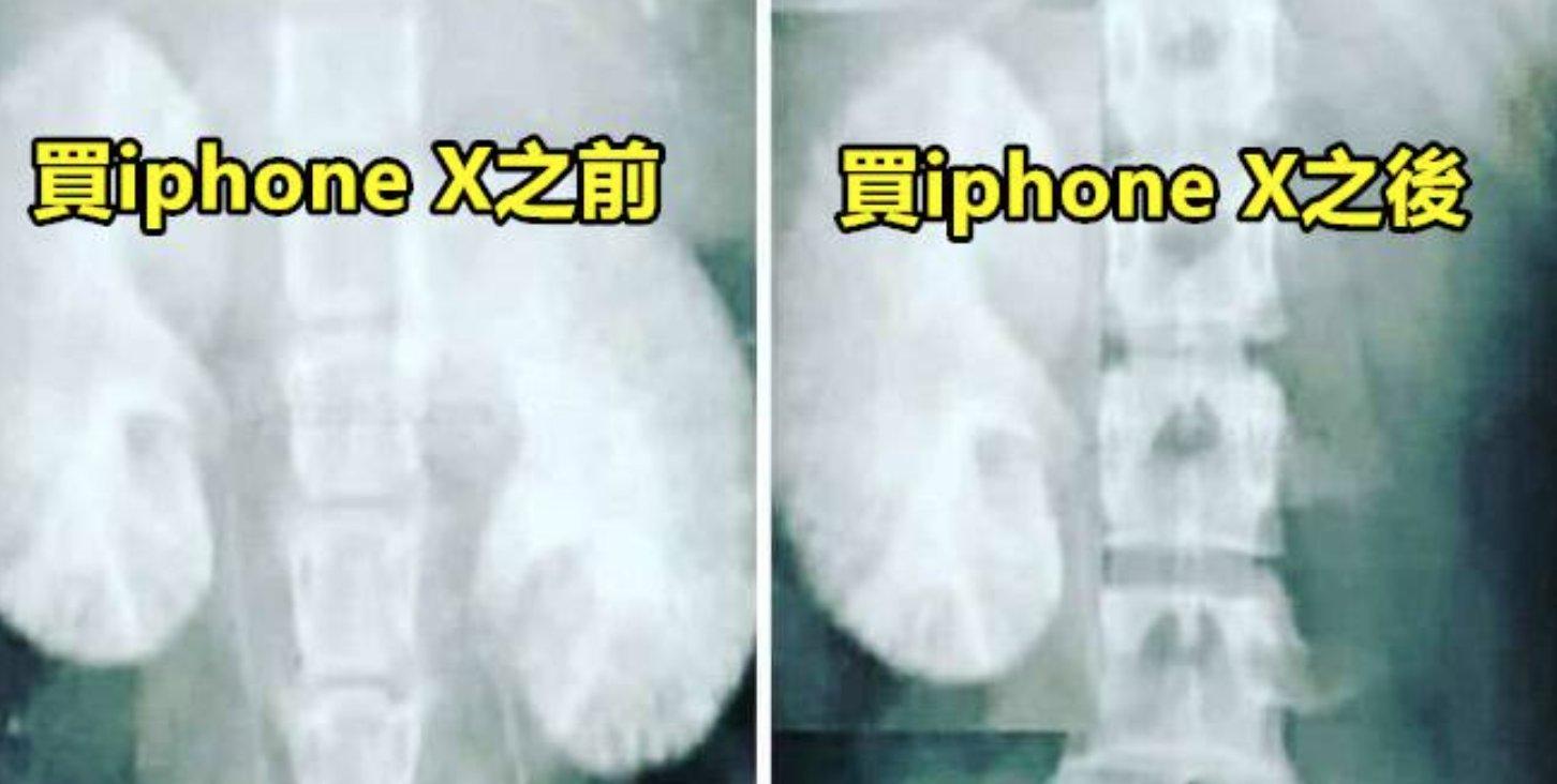 e89ea2e5b995e5bfabe785a7 2017 11 07 e4b88be58d881 29 49.png?resize=300,169 - 貴炸 iphone X 引來全國網友各種吃土譬喻圖,付款方式更是多了....