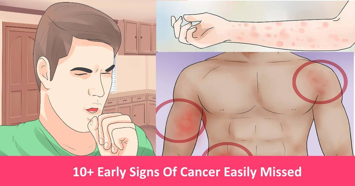 earlycancer