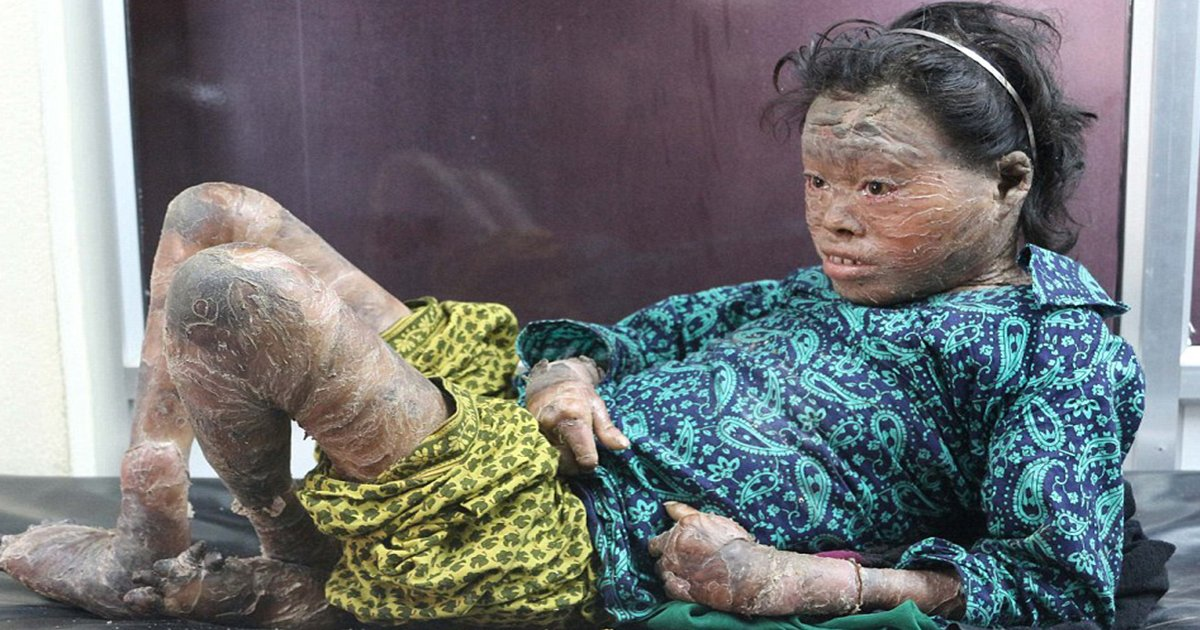 ec8db8eb84ac7 9.jpg?resize=412,232 - Teen Has 'Scaly' Skin But Parents Can't Afford To Help – Then Household Product Changes Her Life
