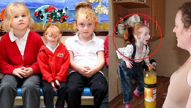 eca09cebaaa9 ec9786ec9d8c 84 - Condição rara: a menor menina do mundo continua a desafiar a opinião dos médicos