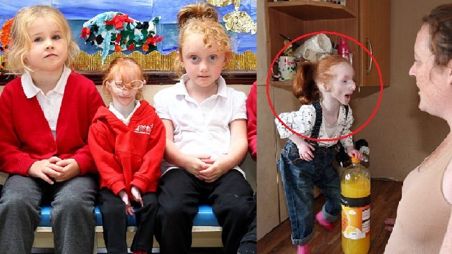 eca09cebaaa9 ec9786ec9d8c 84.jpeg?resize=648,365 - Condição rara: a menor menina do mundo continua a desafiar a opinião dos médicos