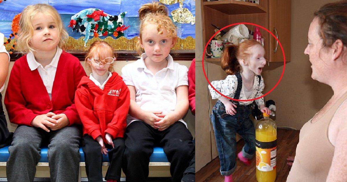 eca09cebaaa9 ec9786ec9d8c 84 - World's Smallest Girl Charlotte Continues To Defy All Medical Odds