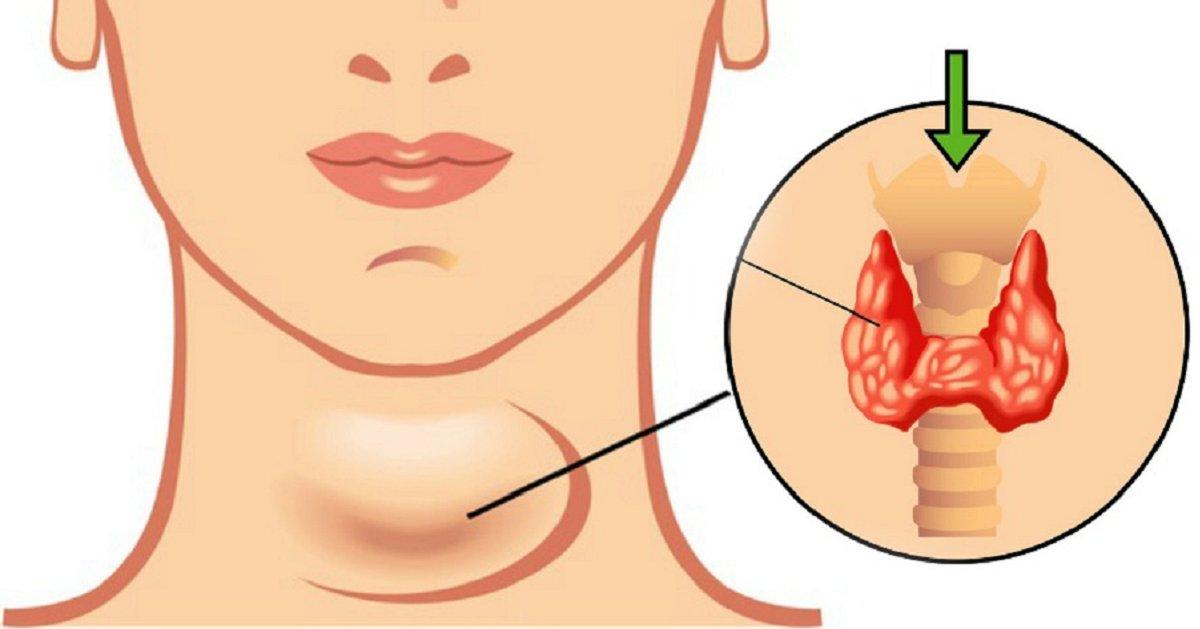 eca09cebaaa9 ec9786ec9d8c 96.png?resize=412,232 - Descubra três fatos úteis sobre transtornos da tireoide