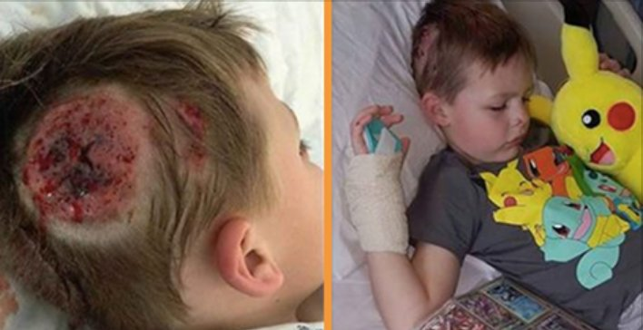 ecbaa1ecb298 48.png?resize=300,169 - A Boy Got Serious Injury On His Head By School Bully