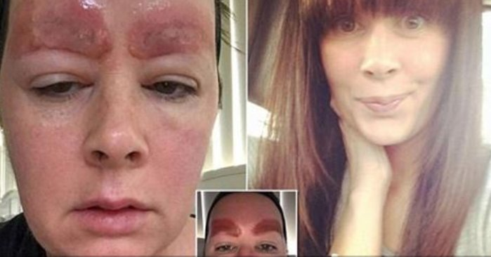 ecbaa1ecb298 50 - A Single Mom Got Eyebrow Feathered Tattoo... But What She Got On Her Eyebrow Was Serious Infection