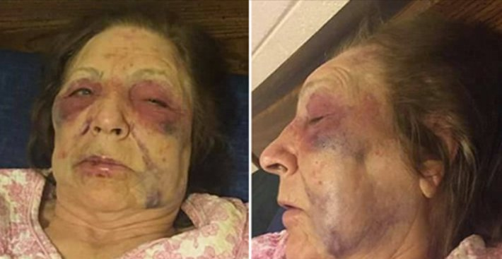 ecbaa1ecb298 54.png?resize=412,275 - 82-Year-Old Grandmother Attacked By Unknown Robbers The Day Before Her Husband's Funeral