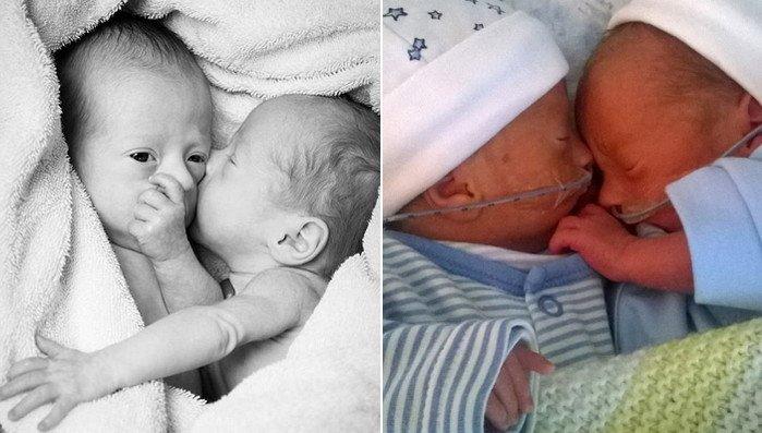 img 59ff2d7b6e3f5.png?resize=1200,630 - お母さんのお腹の中で死ぬ危機に瀕している双子がお互いを抱きしめた