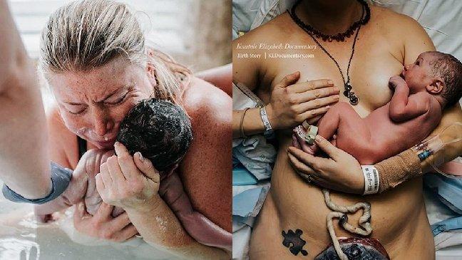 img 5a0a83b0e8e5c.png?resize=300,169 - 2017年国際出産写真コンテスト「出産瞬間ベスト10」母親は本当に素晴らしいです!