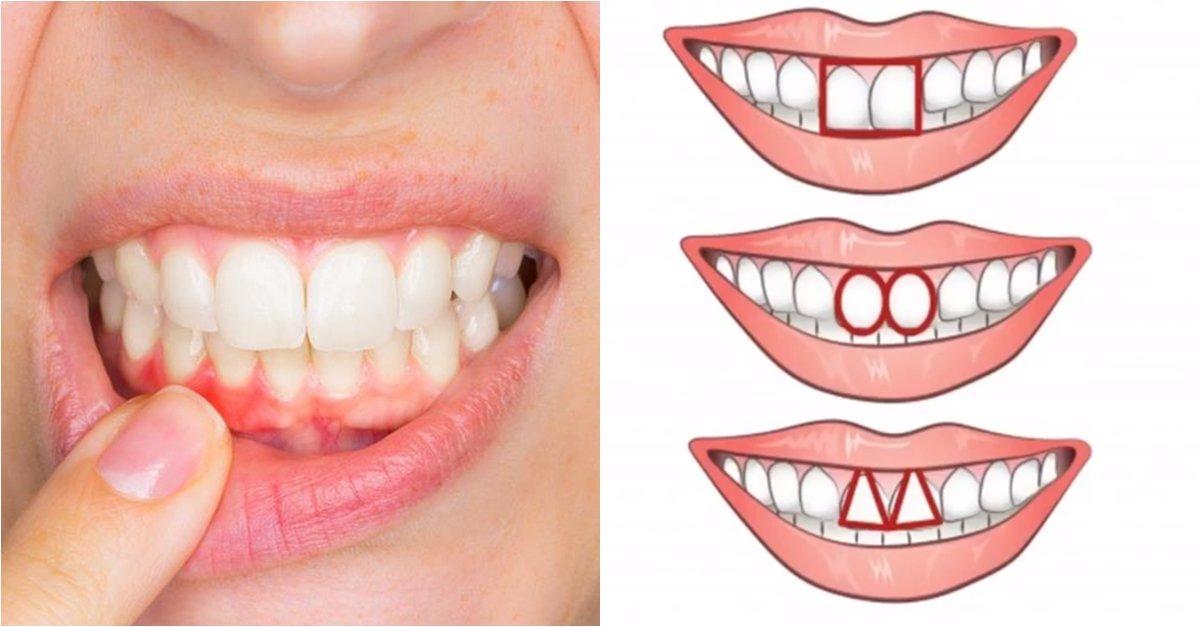 img 5a0c56aa08731.png?resize=1200,630 - 長方形はリーダーシップ?...前歯の形で分かる4種類の性格