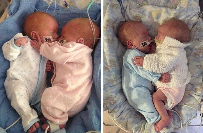 img 5a139f6236edd.png?resize=1200,630 - 死にかけていた「双子」がお互いをぎゅっと抱き締めて「奇跡」が起きた